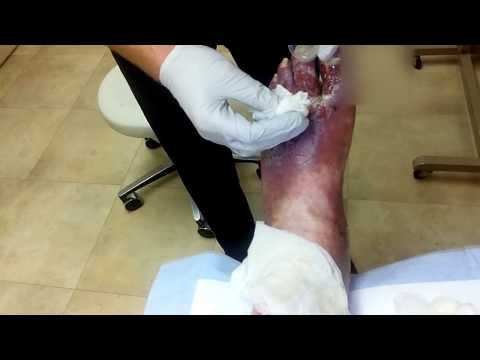 leg cleaning from 8/08/16 (warning graphic)