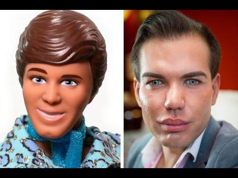 Man ken doll plastic surgery