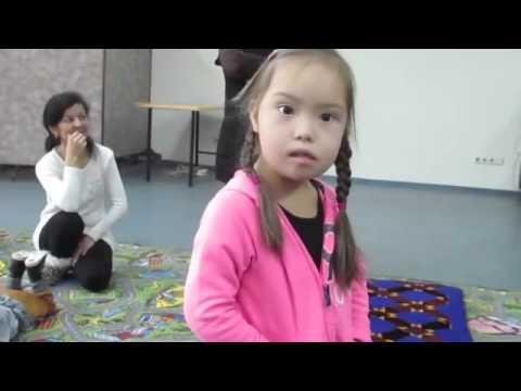 Красивые фотографии детей с синдромом Дауна...
