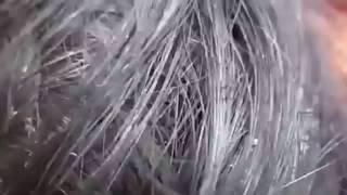 Kafada Canlı Saç Biti Görüntüsü