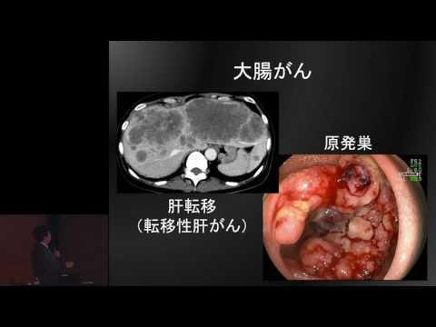 大腸がんの抗がん剤治療~いまとこれから~ 山口 研成
