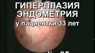 Атипическая гиперплазия эндометрия. Гистероскопия.