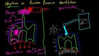 Negative vs. Positive Pressure Ventilation