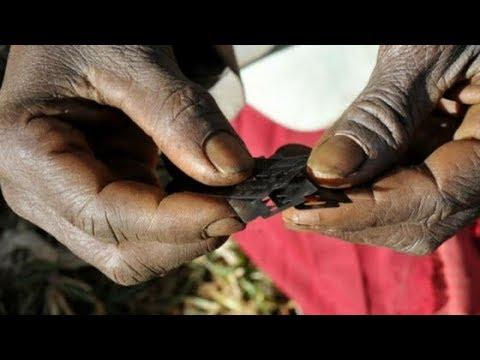O que é celulite?   Namibiauraniuminstitute.com