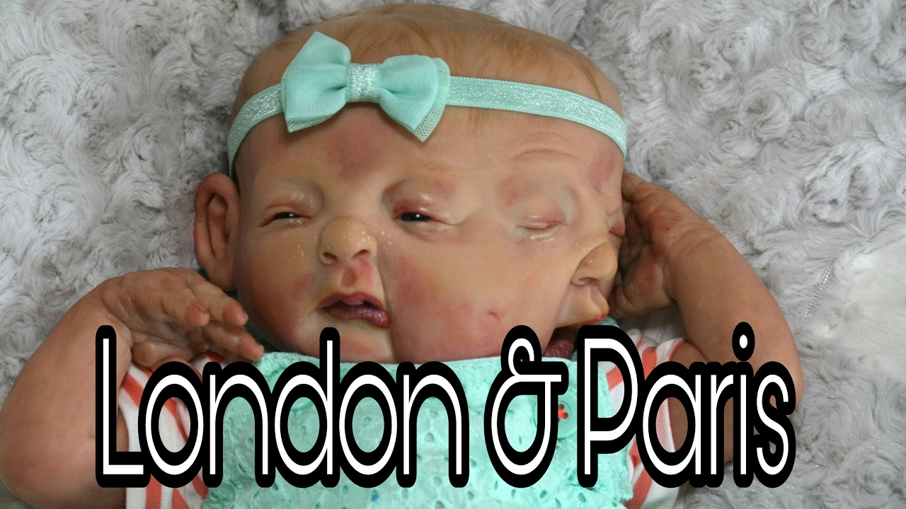 Conjoined Twin Girls Two Faced Baby Baby Born With Two