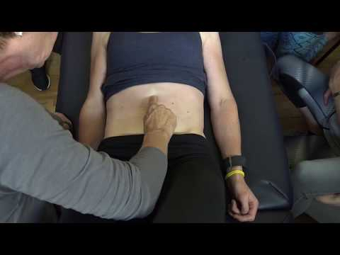 Distortion index of the linea alba in a curl up task in a woman with DRA
