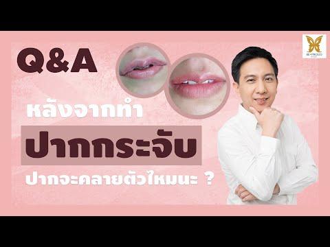 Q&A EP.9 : หลังทำ ปากกระจับ ปากของเราจะคลายทรงหรือไม่นะ??