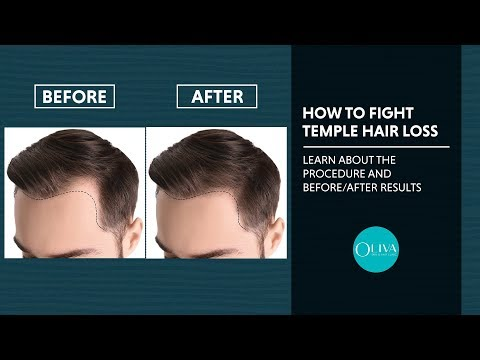 Temple Hair Loss - Does PRP Treatment Really Work For Hair Regrowth?