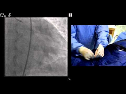 SIF 2013 Live Cases - Treatment of Chronic Total Occlusion