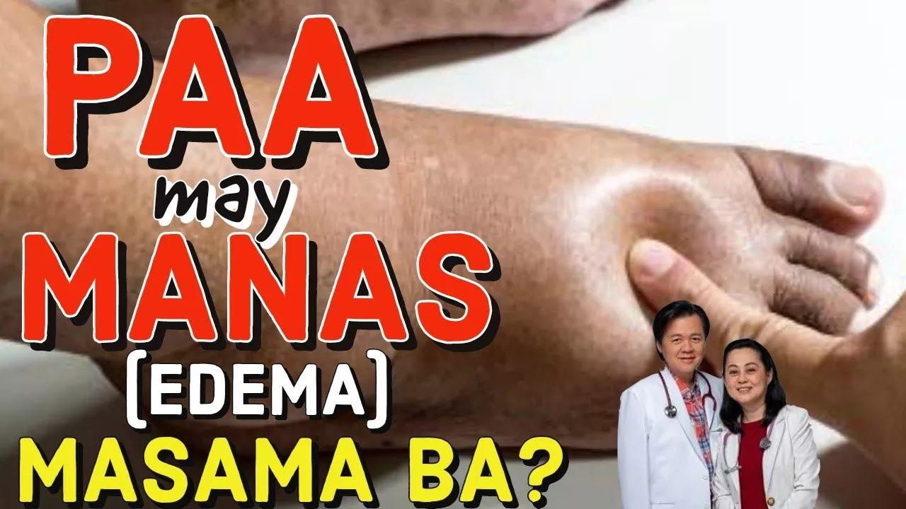 PAA May Manas (EDEMA) MASAMA BA? - Payo ni Doc Willie Ong #173c