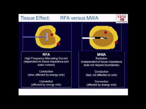 PG Fundamental Use of Surgical Energy (FUSE): Ablation Technologies - RFA, Microwave, HIFU