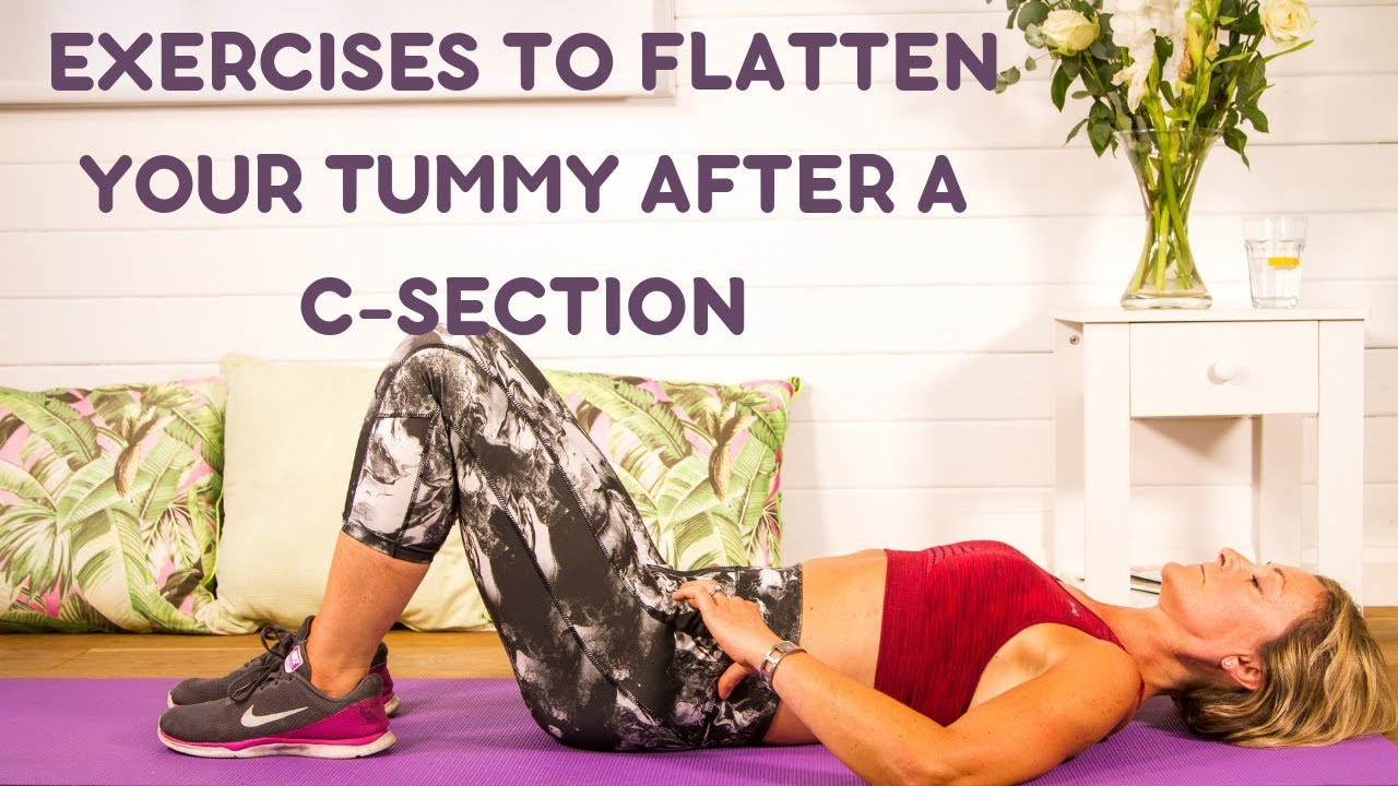 Exercises To Flatten The Tummy After A C-Section ...