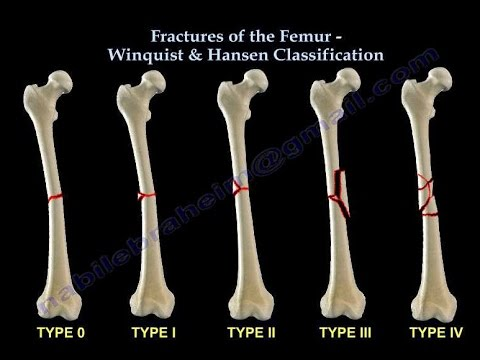 Fractures Of The Femur Shaft Winquist & Hansen  - Everything You Need To Know - Dr. Nabil Ebraheim