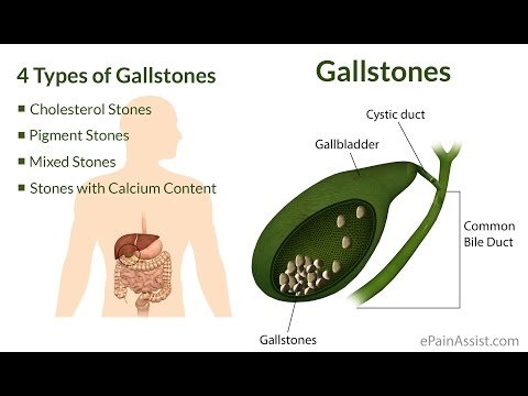 drinking-apple-cider-to-flush-out-gall-bladder-stones-[eng-sub]