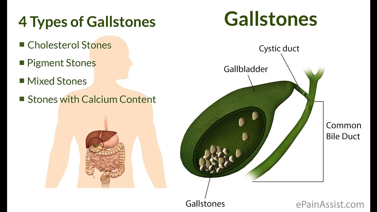 How To Get Rid Of Gallstones Naturally Without Surgery