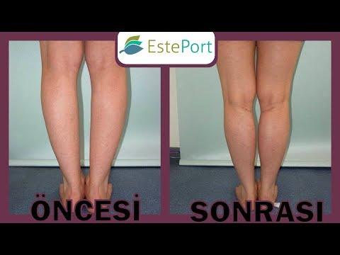 Çarpık Bacak Estetiği Öncesi ve Sonrası [2018]