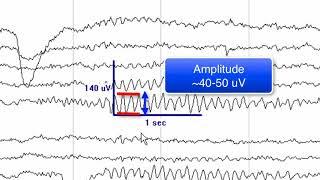 Apa itu EEG (Electroencephalography) ? Bersama dr. Irawati Hawari, Sp.S.