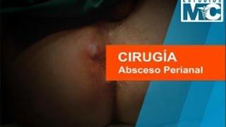 Cirugía, Absceso Perianal