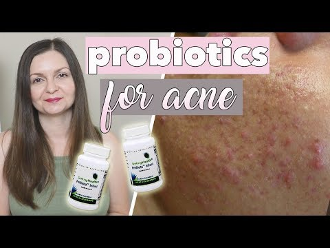 Probiotics For Acne & Clear Skin - Supplements for Breakouts - Clear Skin Diet
