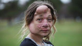 فيديو وصور| علاج امرأة أمريكية مصابة بتشوه شرياني وريدي بـ«البالونات»