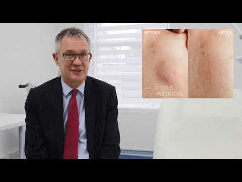 Lipoma Removal – From £375 Wakefield | Leeds | Sheffield