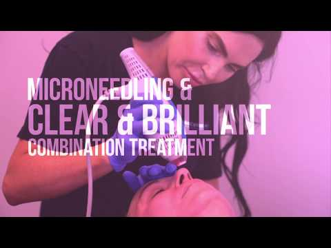 Clear + Brilliant Laser Treatment | Facial Rejuvenation | Dr. Jason Emer