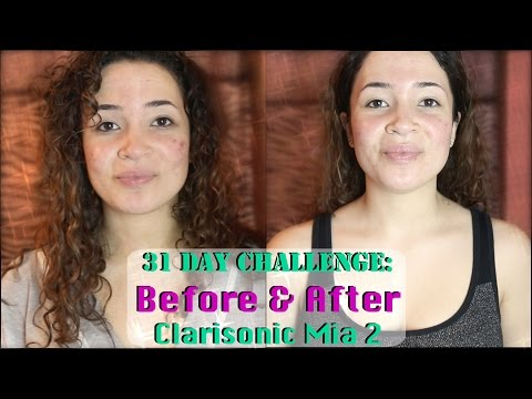 31 DAY CHALLENGE: BEFORE & AFTER CLARISONIC MIA 2