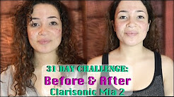 hqdefault - How To Use Clarisonic Mia 2 Acne