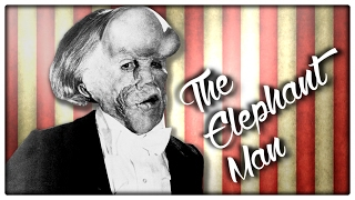 THE ELEPHANT MAN - Across The Whoniverse #4