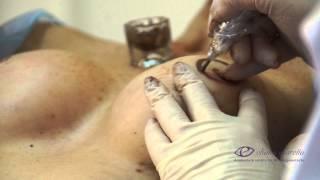 Micropigmentação Paramédica - Complexo Mamário