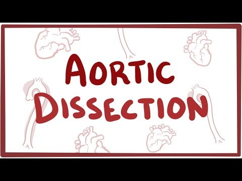 Aortic Dissection - Causes, Symptoms, Diagnosis, Treatment, Pathology