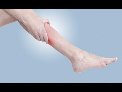 Болит икроножная мышца после судороги что делать