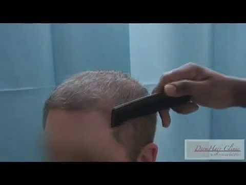 Hair Transplant Revolution using Body hair transplant - BHT & FUE - Dr. Sanusi Umar