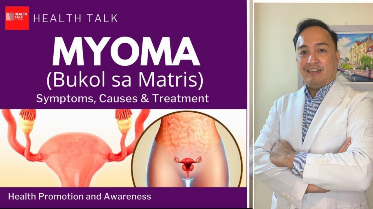 Download Myoma or Bukol sa Matris