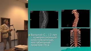 СКЭНАР при переломах трубчатых костей у детей