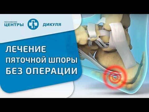 Эффективный народный рецепт лечения пяточной шпоры