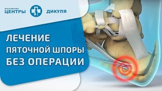 Пяточная шпора. Вопрос-ответ. Московские центры Дикуля о пяточной шпоре.