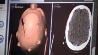 AutoLITT - A Minimally Invasive Brain Tumor Treatment