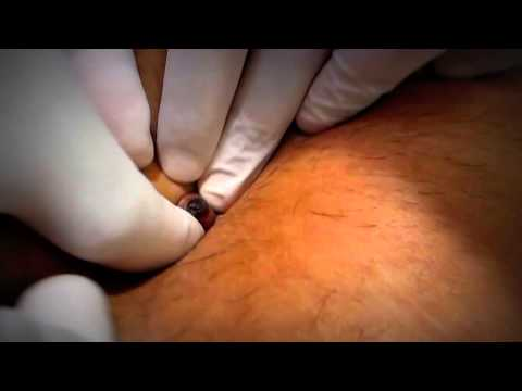 Umbilicus Cleaning How Important is it !