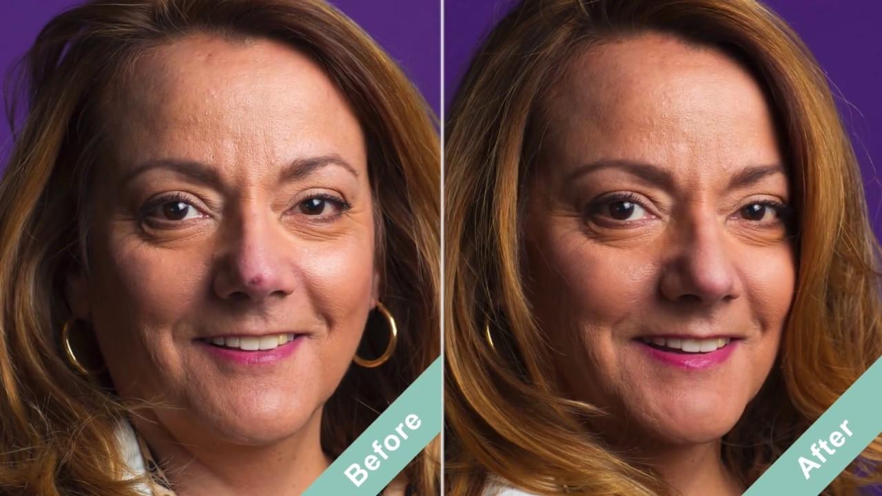 Best Scar Filler Makeup Dermaflage Conceals Scars Intantly Youtube