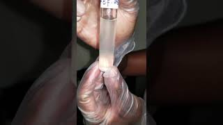 Motility test results 2 1 2019   E coli & S Epidermidis (WARNER)