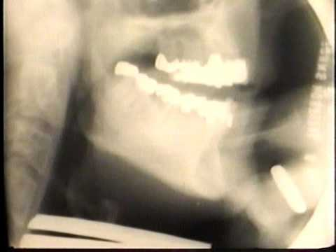 Bud Brisbois video x-ray while playing. Brass playing and syllables