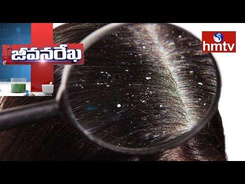 Treatment For Hairfall & Dandruff Problems by ANOO'S Director Anuradha   Jeevana Rekha   hmtv