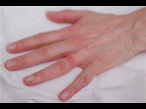 hand dermatitis rings dermatology laser portland treatment eczema norris