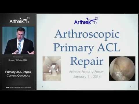 Primary ACL Repair