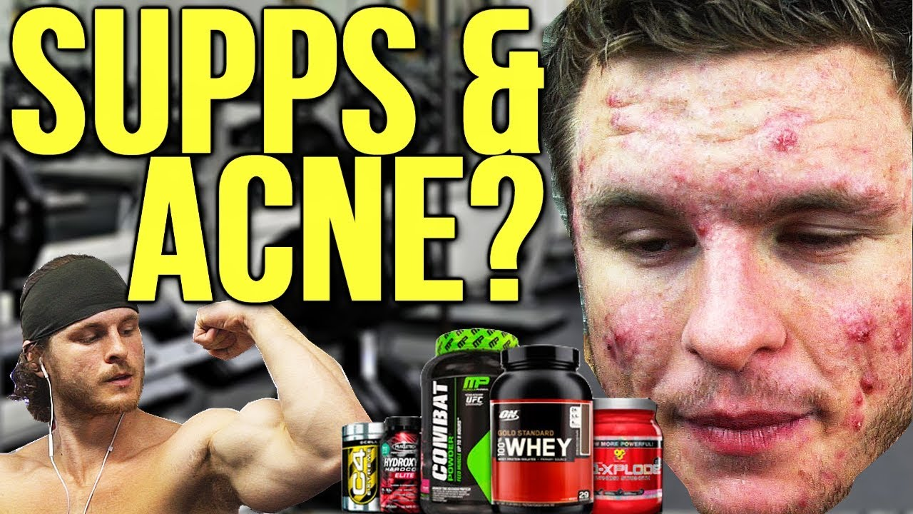 can taking supplements cause acne