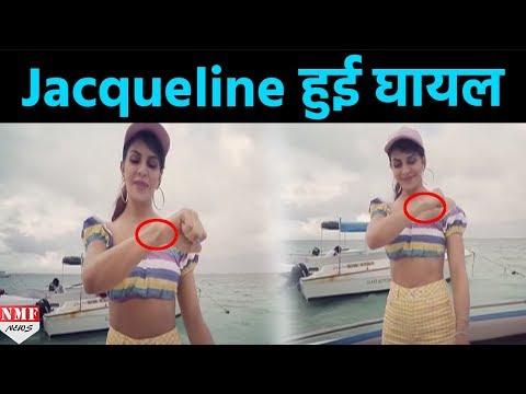 'Judwaa 2' के Shooting के दौरान Jacqueline Fernandez को लगी चोट, Instagram पर Share की Video