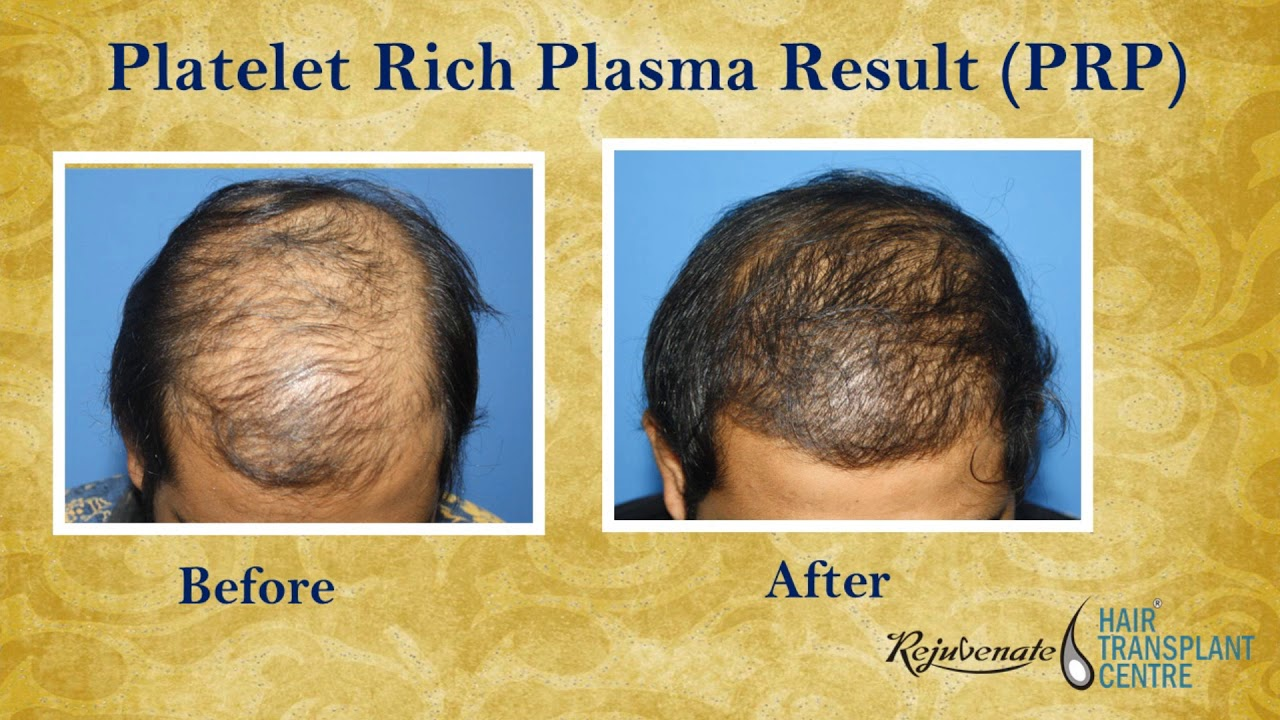 Prp Treatment Results Before And After Prp Therapy For Hair Loss