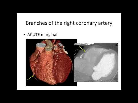 Cardiac anatomy for radiology - Part 4 - coronary arteries