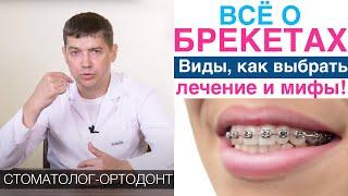 Брекеты виды лечение кривых зубов брекетами преимущества и мифы о брекетах